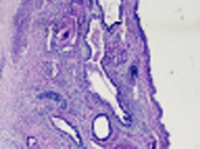 Smíšený germinální tumor tvořený strukturami nezralého teratomu se strukturami žlázového epitelu a primitivního mezenchymu (barvení hematoxylin-eosin, původní zvětšení 40x) Fig. 5. The mixed germ-cell tumor formed with the ungrown teratoma with the structures of adenous epithelium and primitive mesenchyma (coloured in hematoxylin-eosin, 40x zoomed)