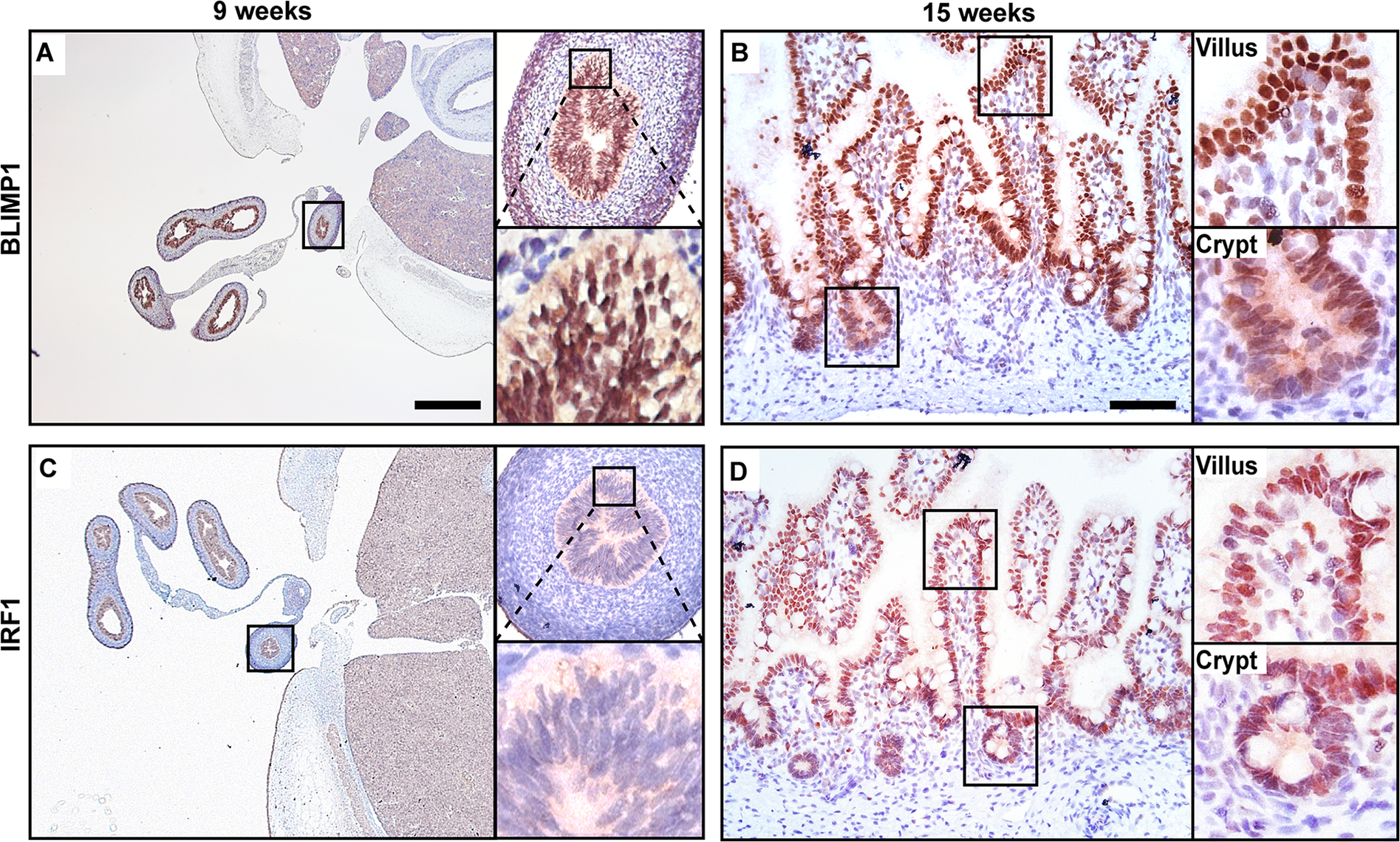 BLIMP1 and IRF1 are co-expressed in fetal human intestine.