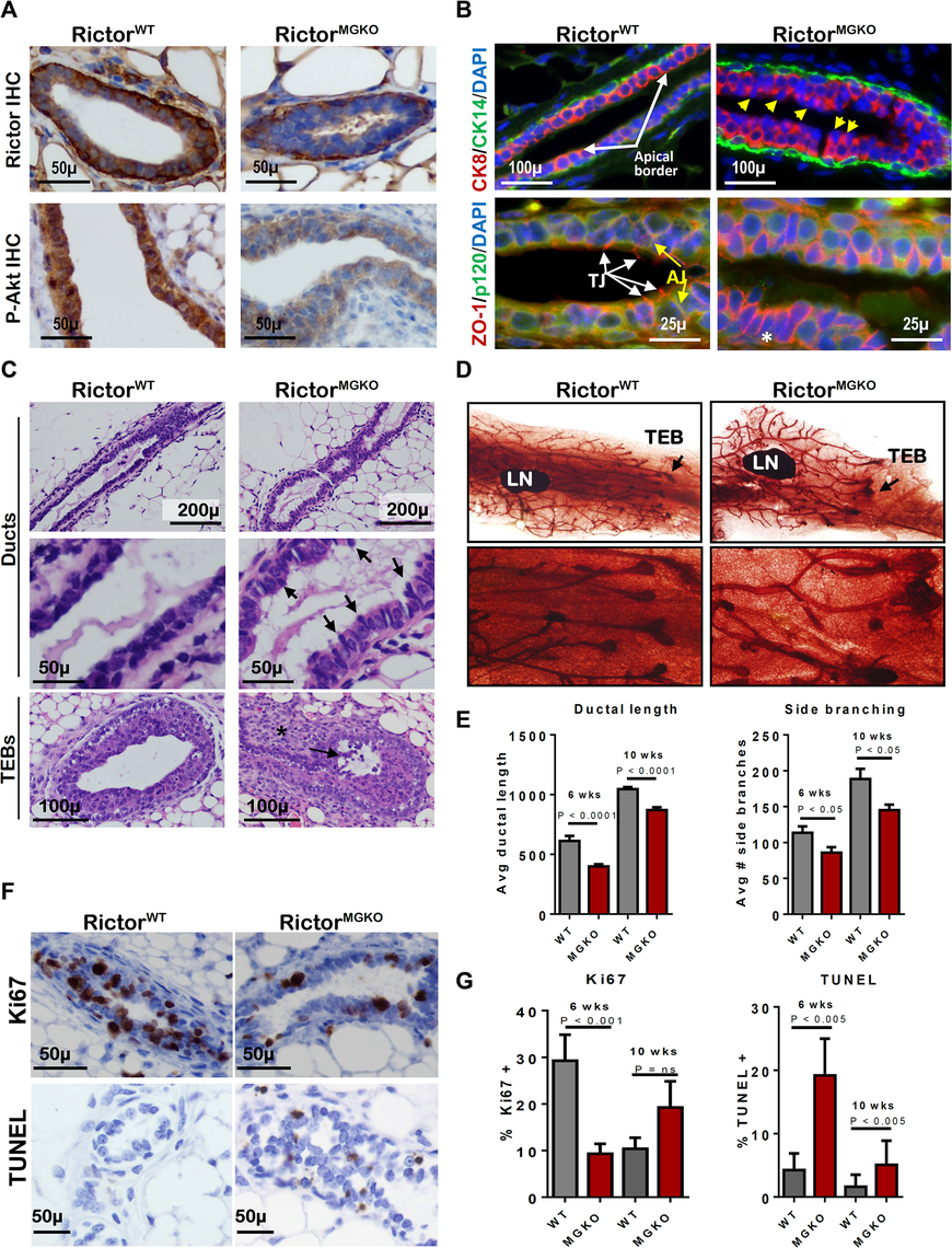 Loss of Rictor disrupts mammary branching morphogenesis in vivo.