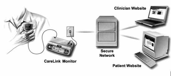 Princip systému Medtronic Carelink (převzato z Pacing Clin Electrophysiol 2004, Blackwell Publishing).