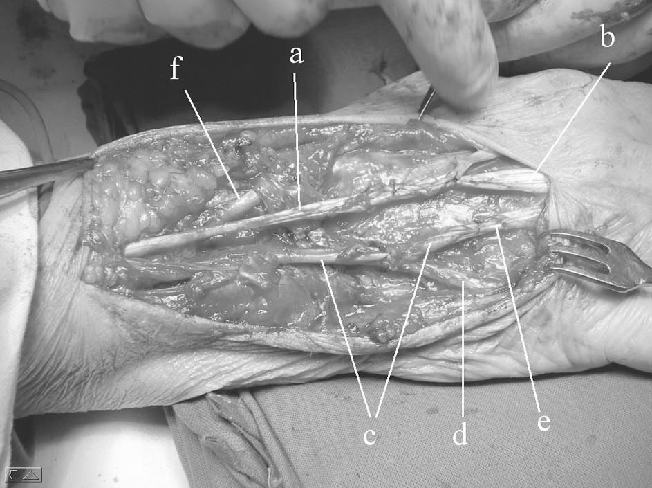 Operační nález šlach po ošetření: a) m.extensor dig. II., b) distální pahýl extenzoru 3. prstu,  c) transponovaná šlacha m. extensor indicis proprius,  d) distální pahýl extenzoru 5. prstu,  e) distální pahýl exzenzoru 4. prstu, f) šlacha m. extensor pollicis longus (nepoškozený)