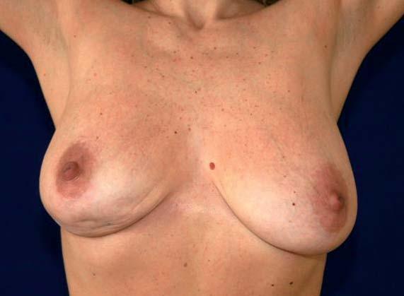 Vtažení kůže v oblasti dolních kvadrantů pravé mamy. Je způsobeno pravostranným multicentrickým karcinomem a viditelné zejména při vzpažení.