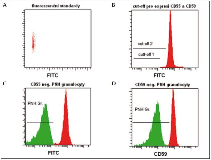 Fluorescenční standardy slouží k určení cut-off, podle kterého odlišujeme normální granulocyty (oblast nad prahem) od PNH granulocytů (oblast pod prahem).