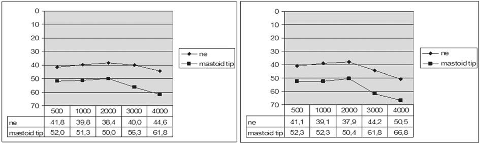 Graf 6b. Kostní vedení před a po operaci podle resekce mastoidního hrotu.