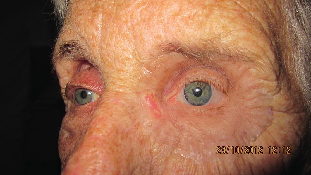 Detail tváre s nasadenou ľavou epitézou očnice