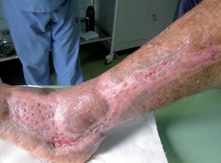 Defekt po 2 mesiacoch po aplikácii dermoepidermálnych štepov