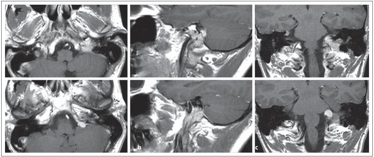 Glomus jugulare tumor sutkovitého tvaru s propagací extrakraniálně i intrakraniálně v MR zobrazení v a) transverzální, b) sagitální, c) koronární rovině.