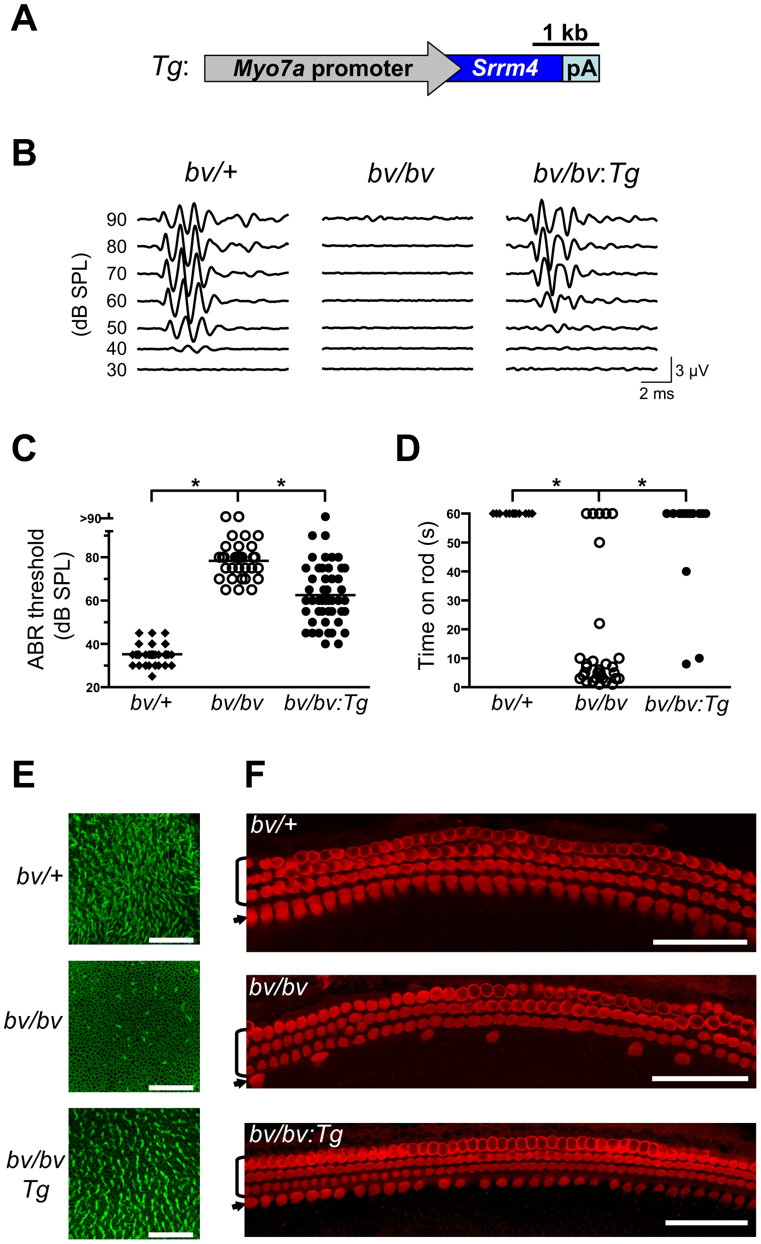 The bv phenotype is rescued by hair-cell targeted expression of an <i>Srrm4</i> transgene.