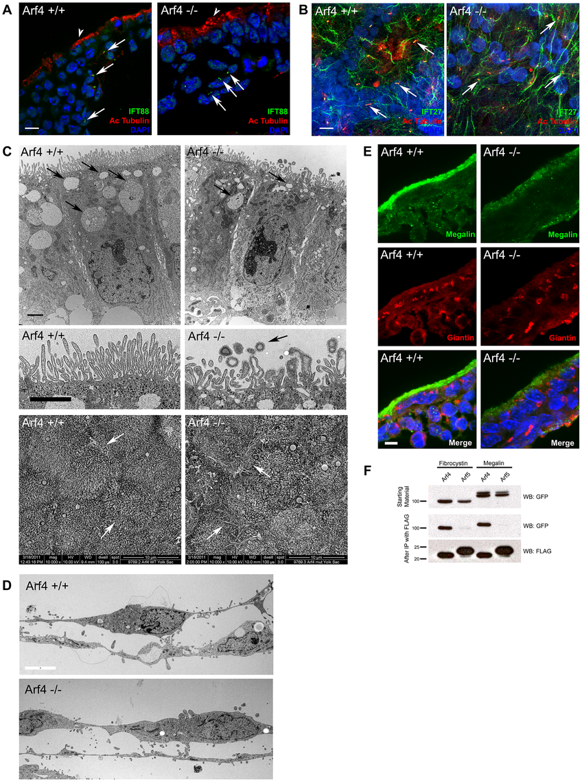 Arf4 mutant embryos have defects in the visceral endoderm.