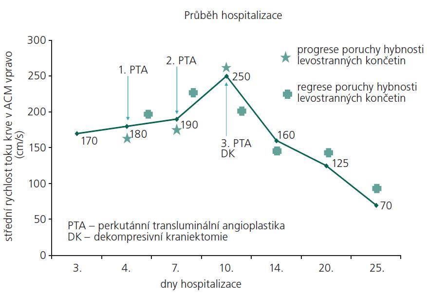 Graf znázorňující průběh hospitalizace pacientky, zaznamenány důležité dny či časové úseky, kdy došlo ke změně klinického stavu a k intervencím charakteru perkutánní transluminální angioplastiky či dekompresivní kraniektomie v korelaci s hodnotami střední rychlosti toku krve v ACM vpravo.