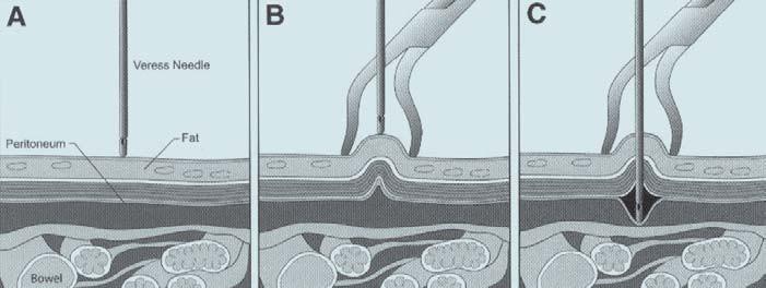 (A) Veressova jehla před proniknutím stěnou břišní. Střevní kličky jsou v blízkosti břišní stěny. (B) Elevací břišní stěny dojde k oddálení peritonea od střevních kliček a zabránění poranění střeva jehlou. (C) Při elevaci břišní stěny může dojít k uvolnění peritonea. Punkce se stává velmi obtížnou. Dochází k insuflaci plynu do prostoru mezi peritoneum a břišní stěnu. Rozpínání arteficiálního prostoru tlačí peritoneum na střevní kličky a punkce se stává nebezpečnou.