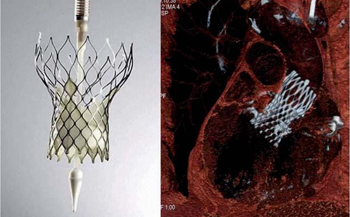Protéza CoreValve ReValving třetí generace – vlevo ex vivo, vpravo na CT zobrazení in vivo (CT dokumentace laskavě poskytnuta MUDr. Markem Labošem, FN KV).