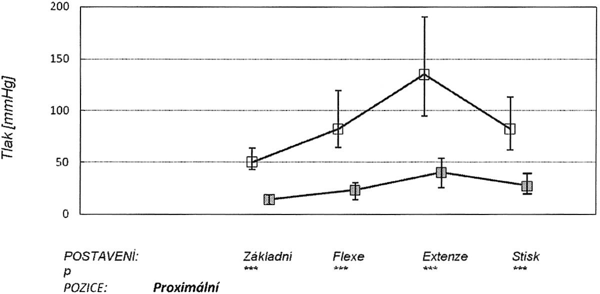 V grafu jsou znázorněny: medián (čtvereček), 25. a 75. percentil v úrovni proximální části kanálu v různých zátěžových pozicích ruky (základní neutrální postavení, maximální pasivní flexe, extenze a stisk). Horní křivka znázorňuje tlaky před protětím ligamenta, dolní po protětí. Graph1. The graph depicts: the median (a square), the 25th and 75th percentiles at the proximal part of the tunnel during various stress positions of the hand (a basic neutral position, the maximum passive flexion, extension and a hand grip). The upper curve depicts pressure measurements prior to the ligament section, while the lower one those after the section procedure.