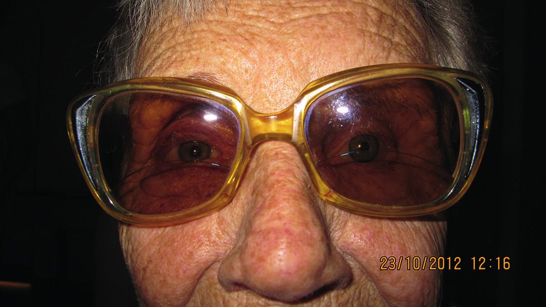 Fotografia pacientky po nasadení epitézy a slnečných okuliarov