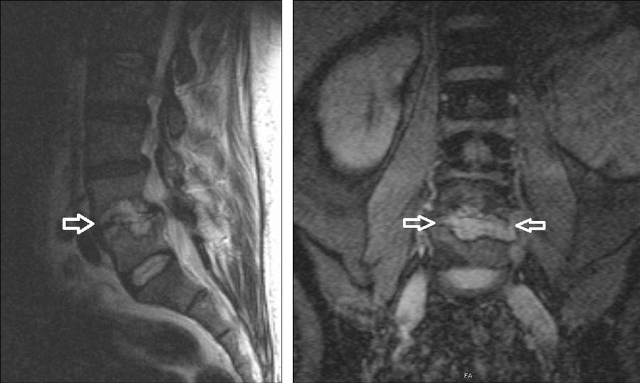 Obr. 1 a 2. Obraz akutní spondylodiscitidy v etáži L4/L5 v T2 váženém obraze magnetické rezonance