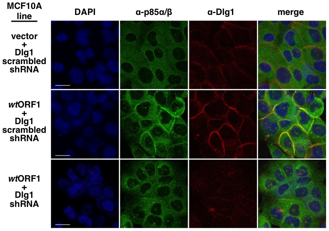 ShRNA-mediated Dlg1 depletion diminishes E4-ORF1-induced recruitment of PI3K to the plasma membrane.