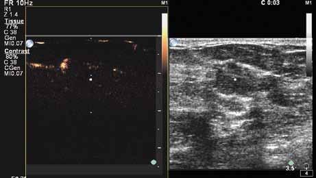 Již ve třetí sekundě po aplikaci kontrastní látky (SONOVUE) je průkazný výrazný cévní kmen - na obrázku vlevo nahoře.