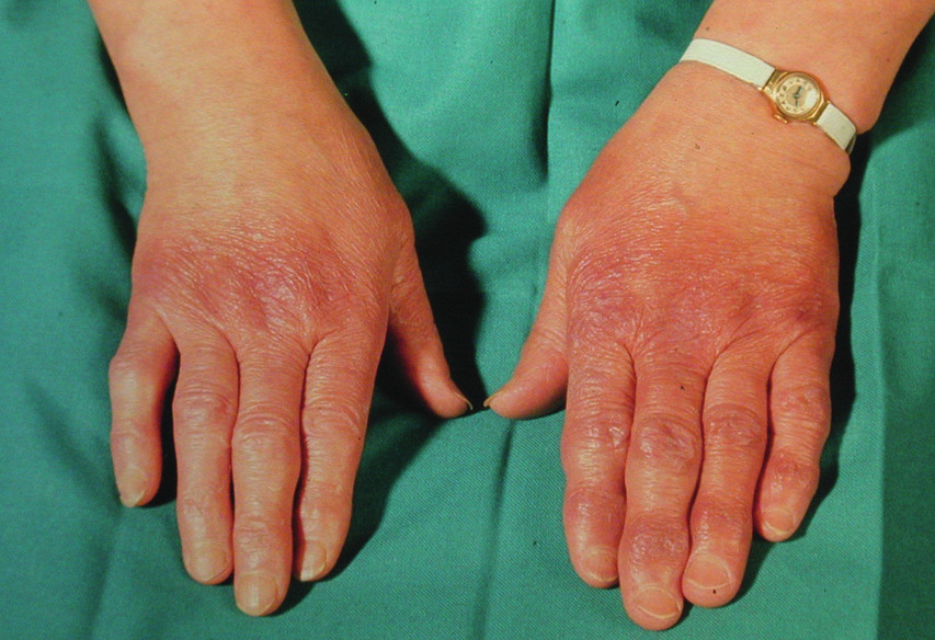 Acrodermatitis chronica atrophicans – dorza rukou