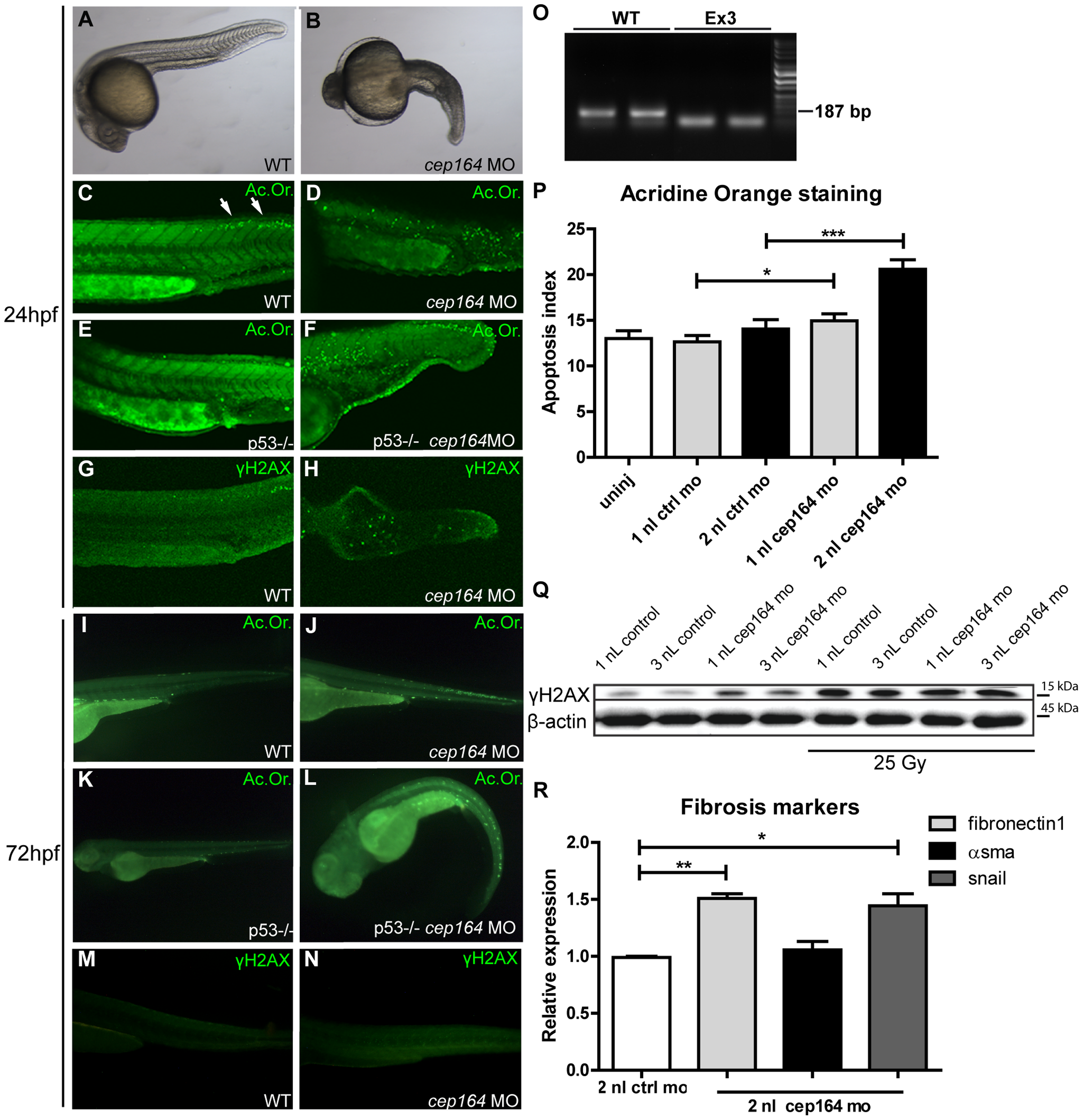 Apoptosis, DNA damage signaling and fibrosis in zebrafish.