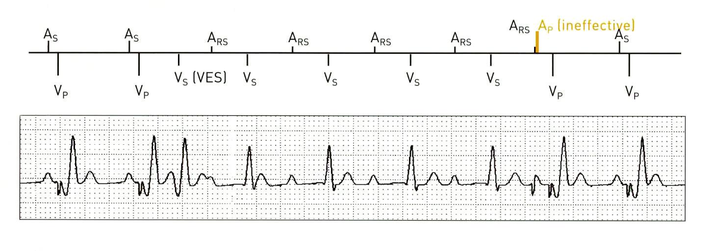 VES Locked In neboli funkční atriální undersensing. Vlastní sinusový stah spadající do doby atriální refrakterní periody (ARP) v důsledku např. předchozí komorové extrasystoly (VES) nespouští AV-zpoždění. Spontánně převedený komorový stah je hodnocen jako VES (komorová extrasystola) a je následován prodloužením ARP. Bez intervence PM či terminující situace (např. extrasystola) se stav udržuje. Funkce VES Locked In Protection situaci dokáže detekovat a terminovat. (zdroj: Biotronik Philos II. Výukový materiál)