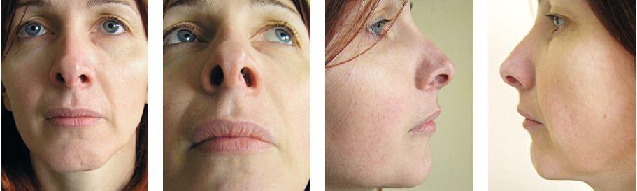 Pacientka po rinoplastike s pomerne dobrým efektom. Široká špička ani mierne reziduálny hrb jej nevadia, požaduje korekciu retrakcie alárnej chrupky najmä vpravo a deviáciu dolného okraje septa viditeľnú v ľavom vestibule nosa.