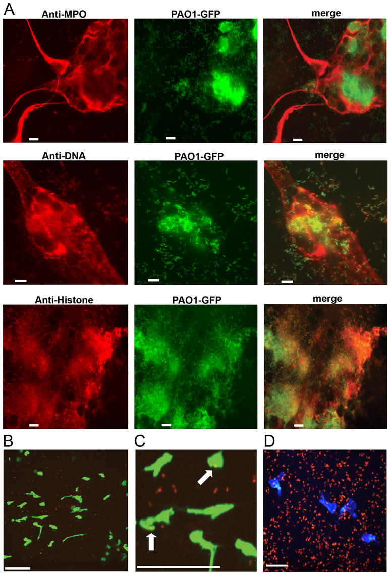 <i>P. aeruginosa</i> PAO1 is trapped by human and mouse neutrophil extracellular traps.