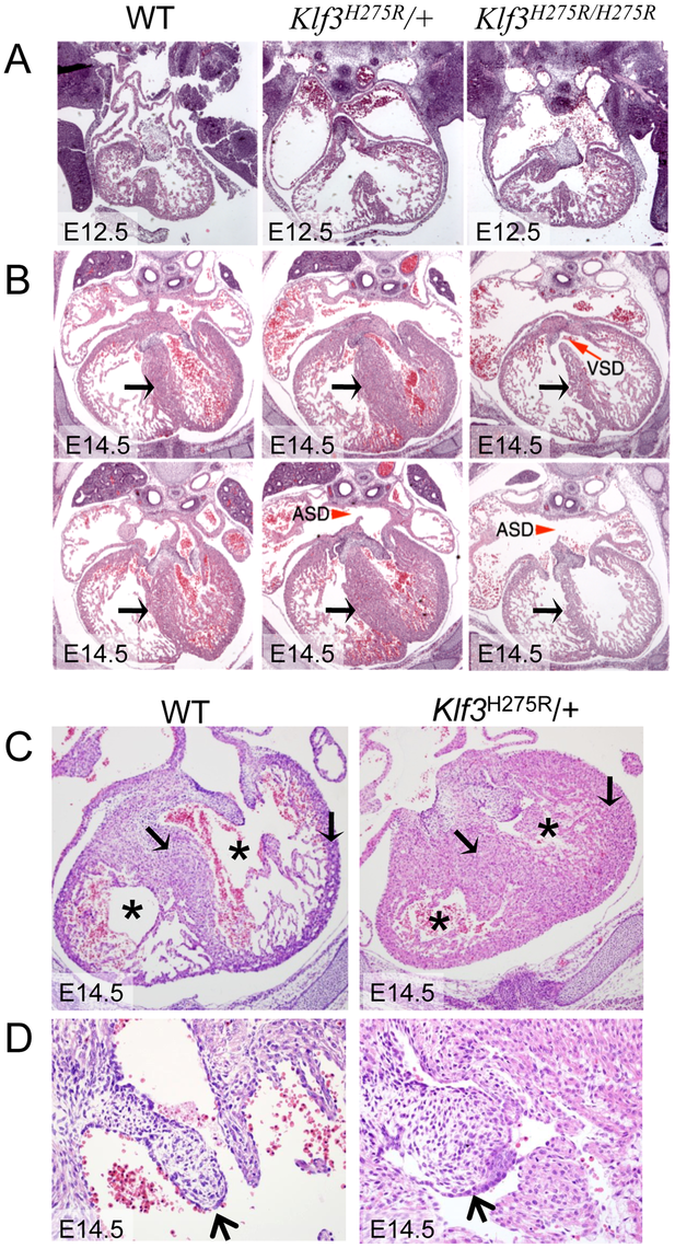 Abnormal cardiac histology in <i>Klf3<sup>H275R</sup></i> embryos.