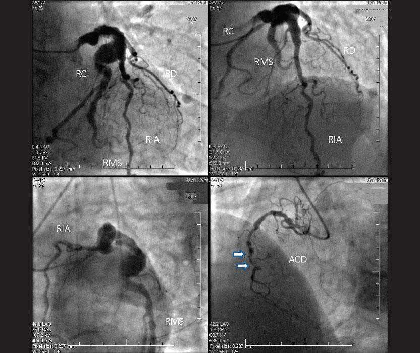 Koronarografický nález nemoci tří tepen a ektatického postižení RIA a RC. Předpokládaná culprit léze je označena šipkami.