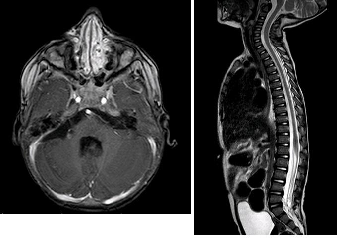A, B: Na kontrolním MRI cerebrospinální osy 7 měsíců od primární resekce je patrná jasná regrese primárního ložiska včetně všech metastatickým lézí Image 6 A,B: Follow-up MRI after 7 months since primary resection showing regression of both primary lesion and metastatic foci.