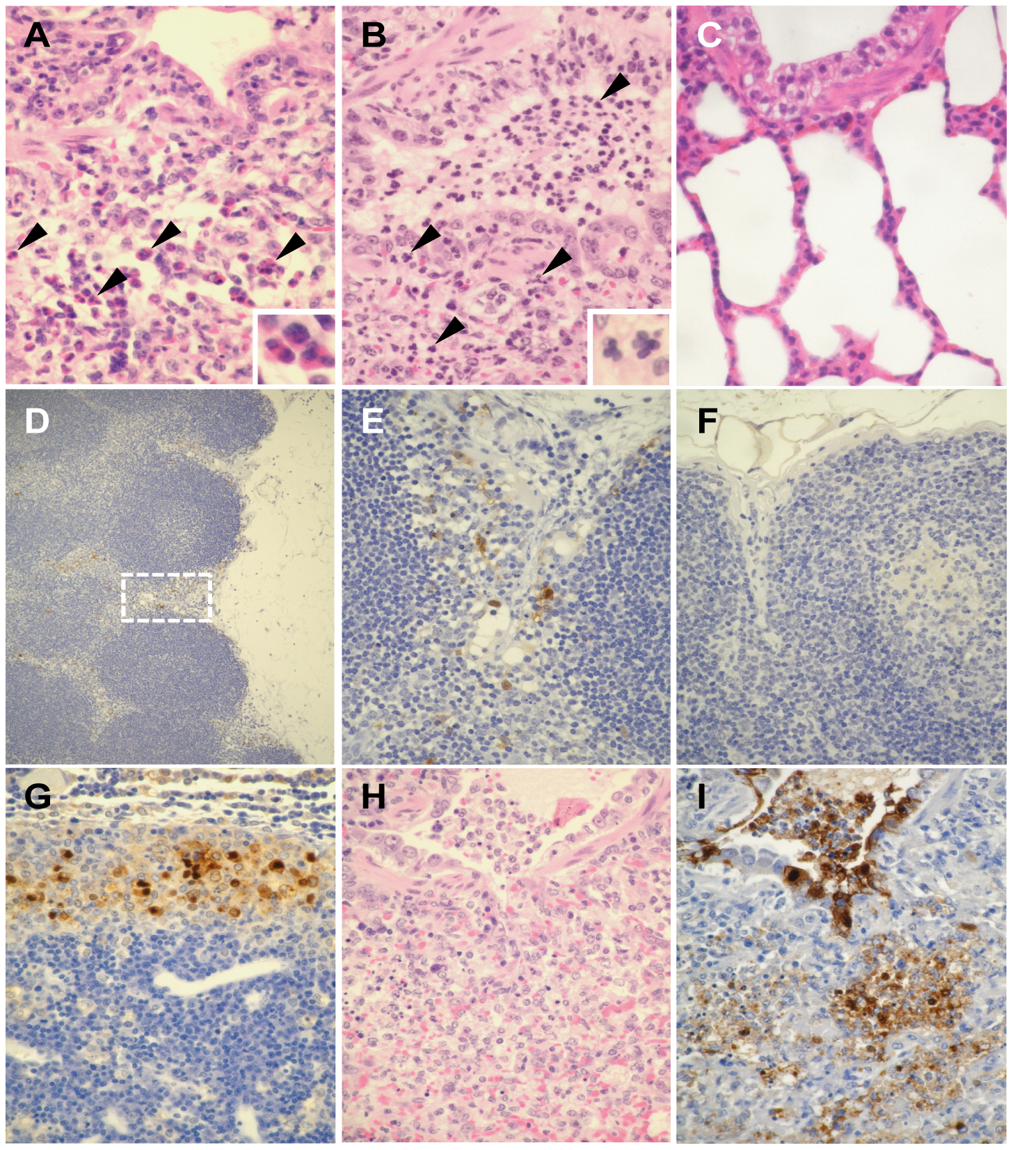 Pathological findings in ferrets infected with UT3062 or 3062(HA+NS).