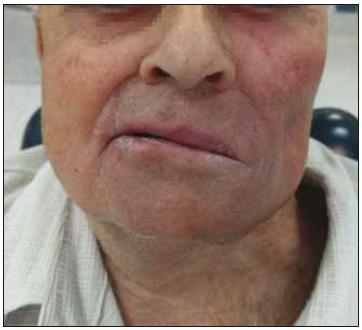 Výsledek operace (po 5 měsících) (pacient č. 1).<br> Fig. 5. Postoperative result (5 months after surgery) (patient No. 1).