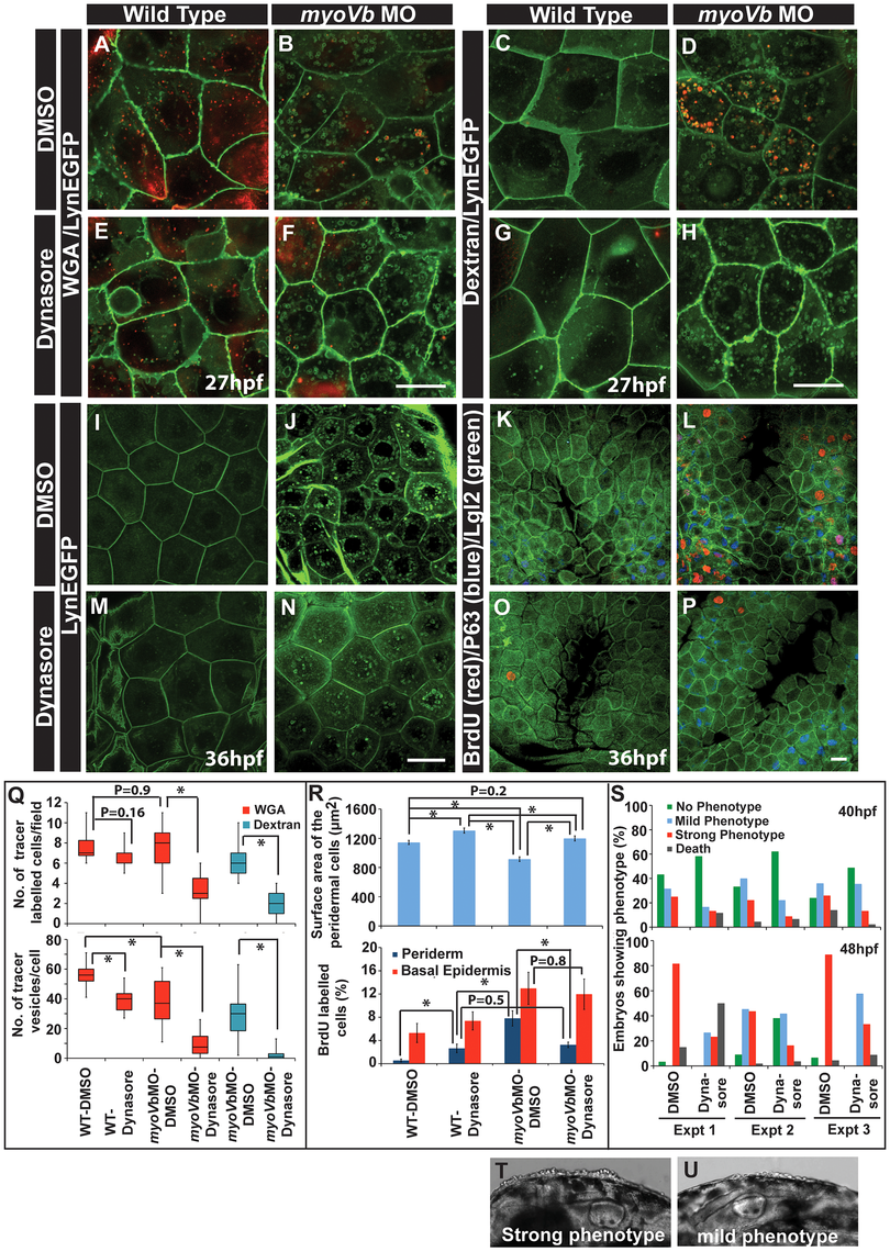 Reduction in endocytosis mitigates the cellular and morphological phenotype in Myosin Vb deficient embryos.