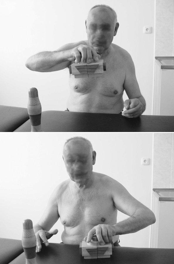 """Hodnocení jemné motoriky testem TMF. Legenda: subtest TMF """"Zvedání domu dlaňovým úchopem"""" - srovnání výkonu pravé a levé ruky. Levou rukou pacient nesvede udržet čtyři díly Domu pohromadě a zvednout objekt. Jsou viditelné asociované pohyby pravé ruky (obr. vpravo)."""