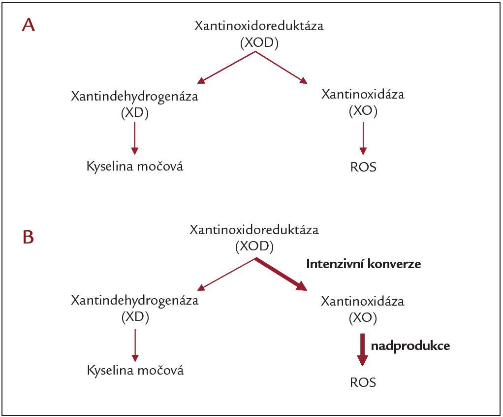 Konverze xantinoxidoreduktázy: A) za normálních podmínek a B) v průběhu ischemie/reperfuze.