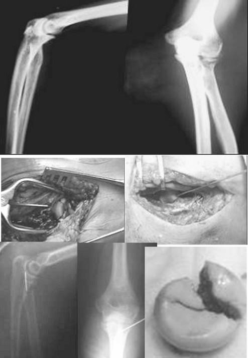 Zlomenina typu Mason III ošetrená extrakorporálne osteosutúrou vstrebateľným Vicrylom a následne topicky replantovaná ako spacer s transfixáciou Kirschnerovym drôtom