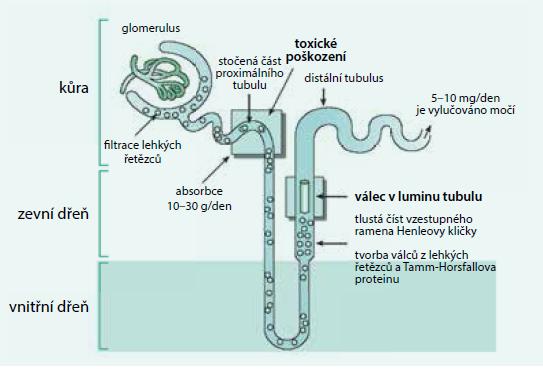Tubuly poškozují agregáty monoklonálních lehkých řetězců, glomerulární membránu poškozují amyloidová či neamyloidová depozita Volné lehké řetězce jsou fyziologicky filtrovány v glomerulech a vstřebávány v proximálním tubulu. Při vysoké koncentraci volných lehkých řetězců imunoglobulinů v plazmě procházejí volné lehké řetězce do distálních částí nefronu, v němž dochází ke koncentraci moči, k precipitaci těchto lehkých řetězců a ke tvorbě odlitkových válců. To závažně poškodí funkci ledvin. V močovém sedimentu pak lze nalézt zvýšené množství hyalinních válců a zvýšený odpad bílkoviny za 24 hodin. Elektroforézou lze v moči prokázat lehké řetězce jako tzv. Bence Jonesovu bílkovinu.