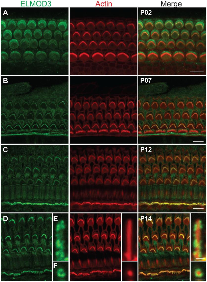 ELMOD3 is expressed in sensory cells of rat organ of Corti.