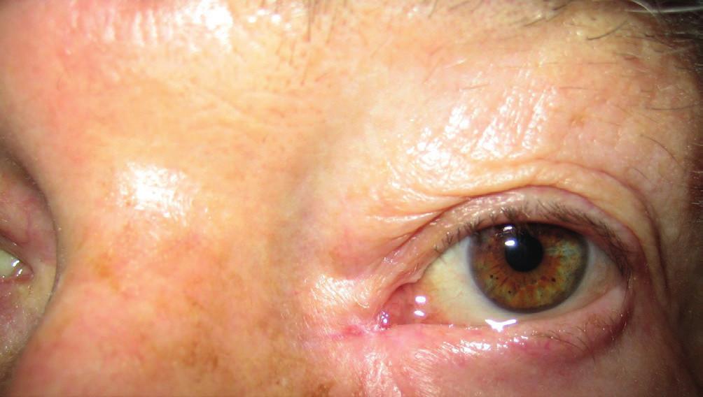 Klinický obraz 2 roky po primárnej excízii (3/2009)