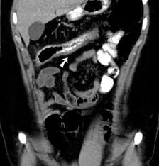 "CT koronárny rez: šípka označuje zhrubnutie steny colon transverzum s ""dirty fat"" v okolí. Fig. 3. CT of coronary cross-section: arrow indicates swelling of the colon traversum wall with 'dirty fat' in the vicinity."