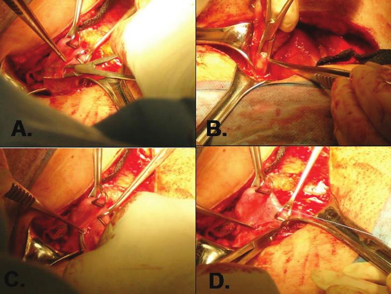 Transplantace proužků ovariálního kortexu do peritoneální kapsy v ligamentum latum uteri (použito se svolením dr. Ariela Revela, Hadassah Medical Center, Jerusalem, Israel) A. vytvoření peritoneální kapsy; B, C. vkládání proužků ovariální tkáně; D. uzavření peritoneální kapsy stehem po vložení transplantátu