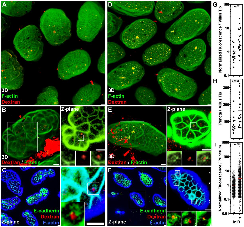 InlB enhances endocytosis at the intestinal villus tips.