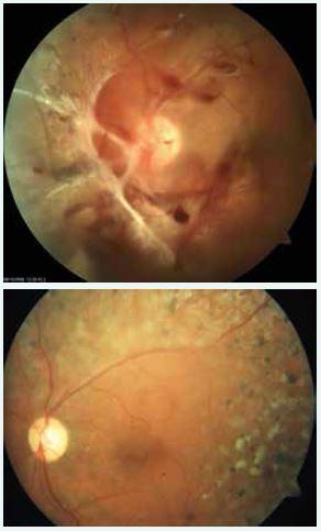Obr. 7. a 8. Proliferativní diabetická retinopatie před a po pars plana vitrektomii a panretinální laserové koagulaci
