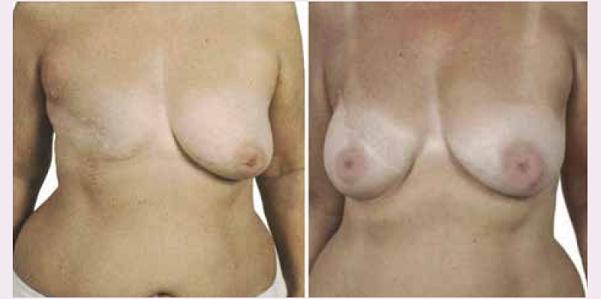 Rekonstrukce prsu implantátem