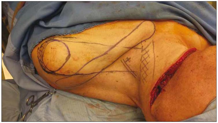 Peroperační nákres laloku (pacient č. 1).<br> Fig. 2. Peroperative marking of the flap (patient No. 1).