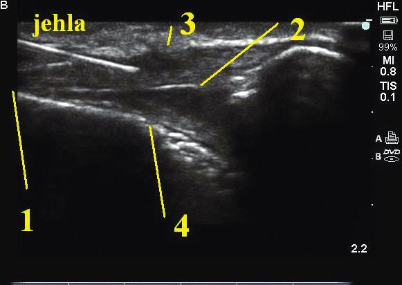 Ultrazvukové zobrazení kaudálního prostoru v podélné projekci