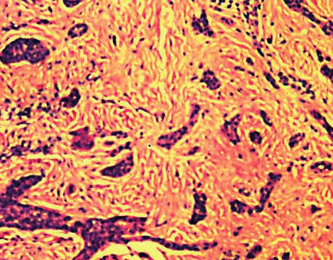Infiltratívny BCC – neohraničené a invazívne rastúce pruhy nádorových buniek infiltrujúce dermu (H&E, 100x)