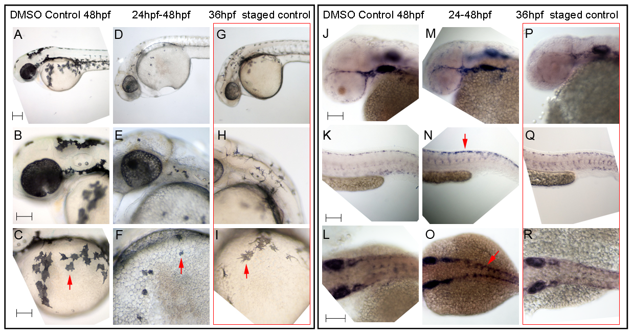 Hdac inhibition with Trichostatin A decreases melanocyte differentiation and prolongs <i>sox10</i> expression in neural crest cells.
