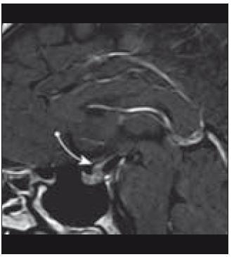 Infiltrace stopky hypofýzy (MRI vyšetření).
