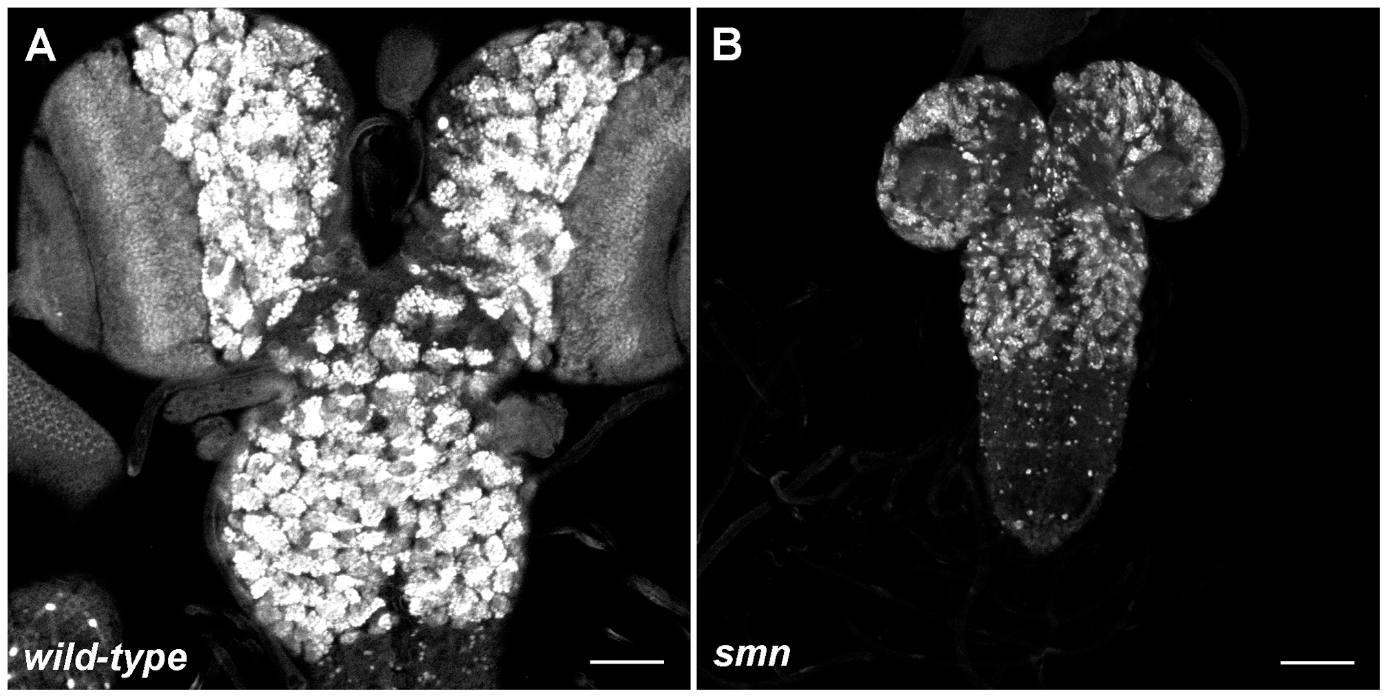 Growth defects in the SMN mutant CNS.