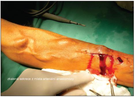 Zkalená sekrece z místa arteriální anastomózy Fig. 1. Opaque secretion from the arterial anastomosis site